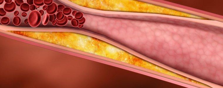 cholesterol9000