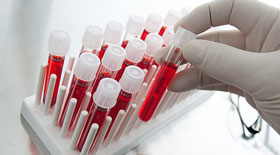анализы-крови
