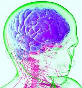 хроническая мигрень лечение